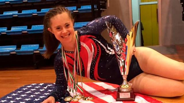 Girl with Down syndrome totally proves doctors wrong, becomes champion gymnast and model